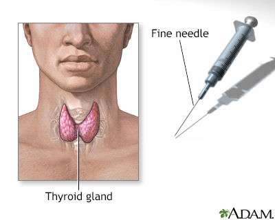 Thyroid gland biopsy