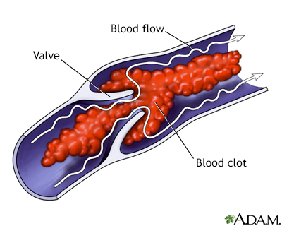 Venous blood clot