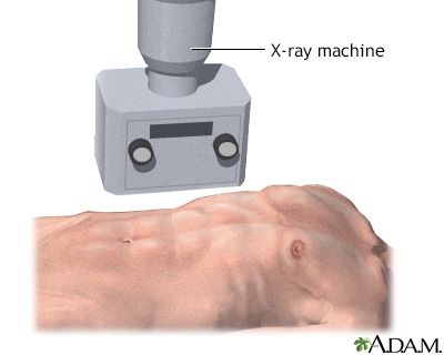 X-ray