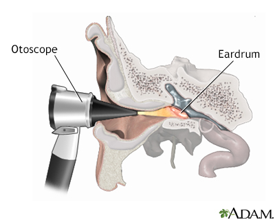Otoscopic exam of the ear