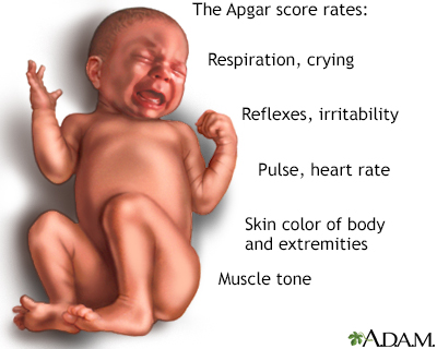 Apgar Scores