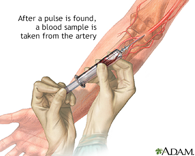 Arterial blood sample
