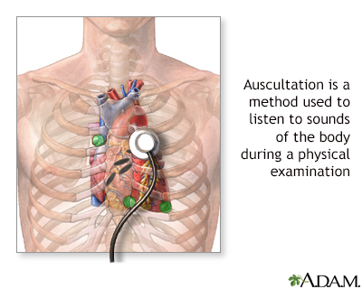 Auscultation