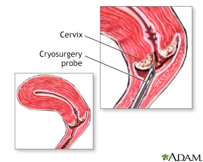 Cervical cryosurgery