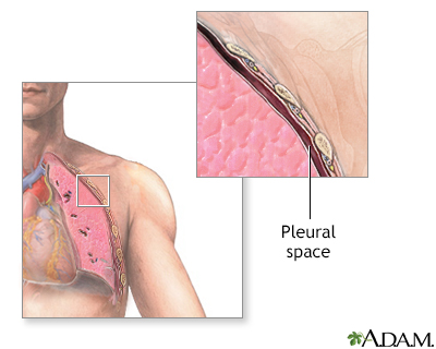 Pleural space