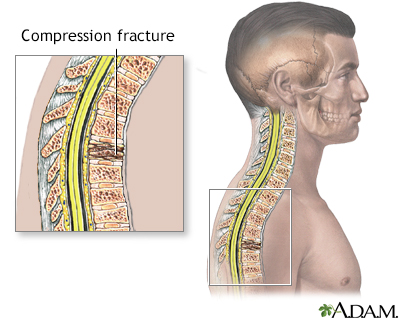Compression fracture