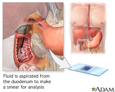 Frotis del tejido duodenal