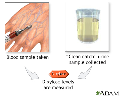 D-xylose level tests