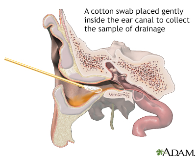 Ear drainage culture