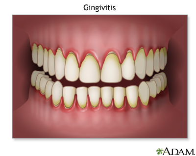 Gingivitis