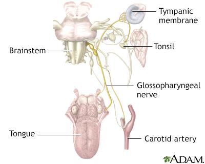 Neuralgia glosofaríngea