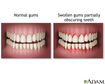 Swollen gums