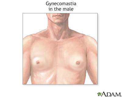 Gynecomastia