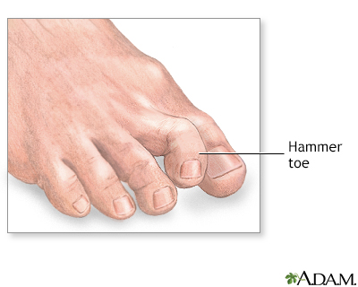 Hammer toe