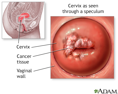 Pap smears and cervical cancer