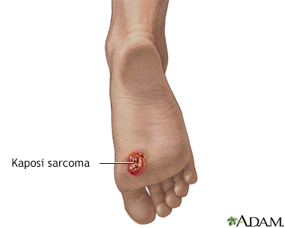 Kaposi's sarcoma on foot