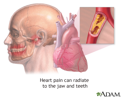 Jaw pain and heart attacks