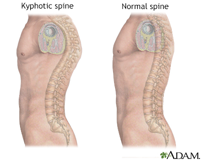 Kyphosis