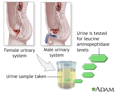 Leucine aminopeptidase urine test