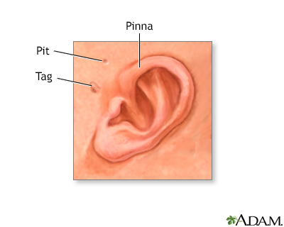 Newborn ear anatomy