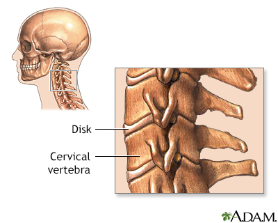Cervical vertebrae
