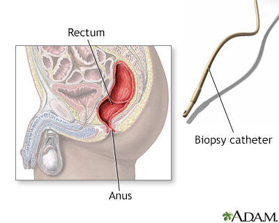 Rectal biopsy