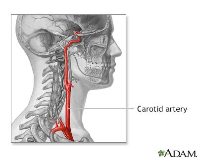 Anatomía de la arteria carótida