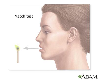 Match test