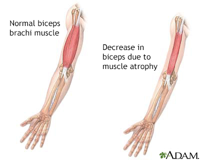 Muscular atrophy