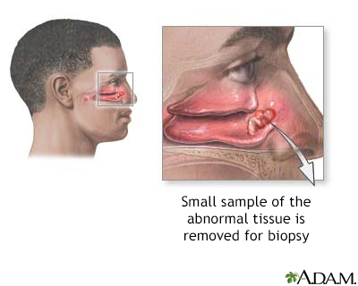 Biopsia nasal