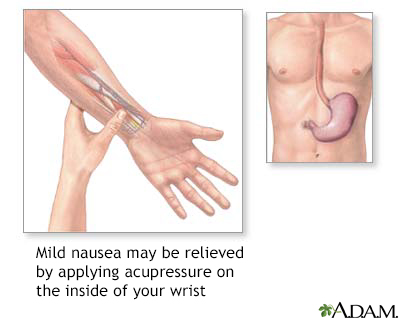 Nausea acupressure