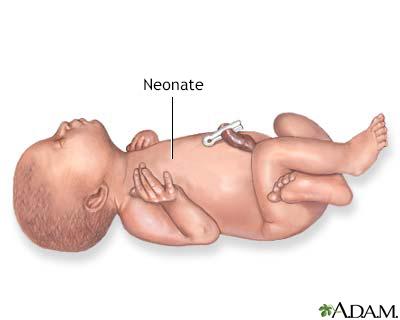 Neonate