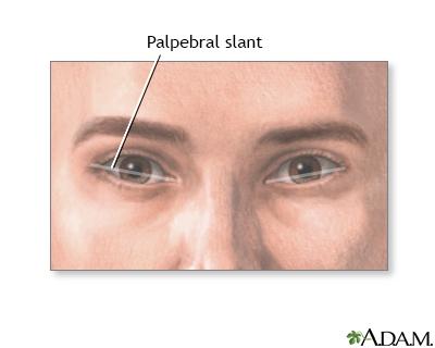 Palpebral slant