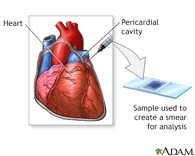 Pericardial fluid culture