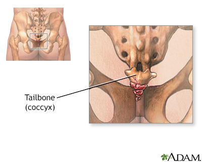 Tailbone (coccyx)