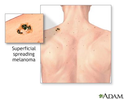 Melanoma