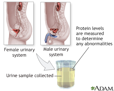 Protein urine test