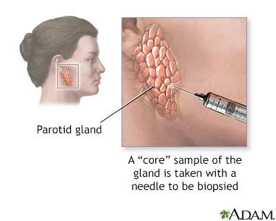Salivary gland biopsy