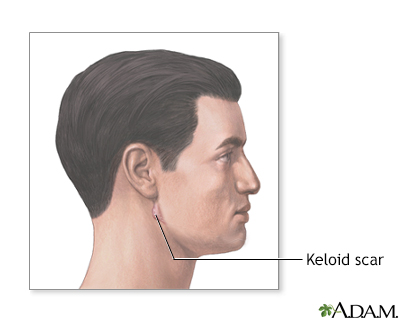 Keloid scar