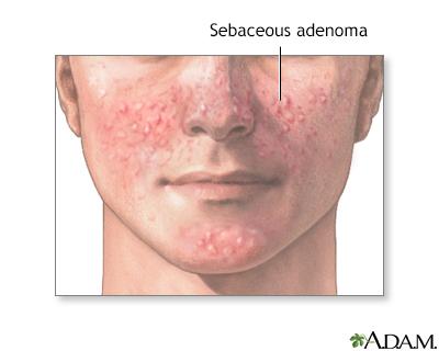 Adenoma sebáceo