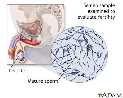 Análisis del semen