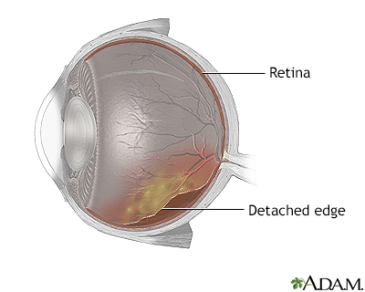 Detached retina
