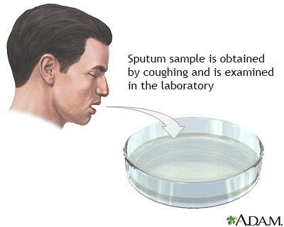 Sputum test