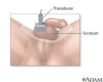 Tesitcular ultrasound