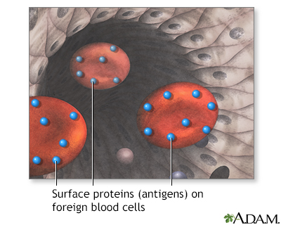Surface proteins causing rejection