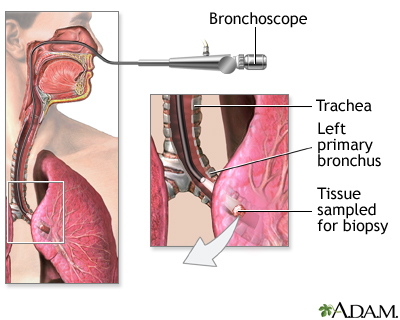 Bronchoscope