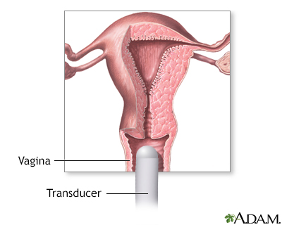Transvaginal ultrasound