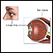 Eye muscle repair - series