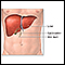 Liver transplant - series