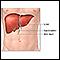 Trasplante de hígado - Serie